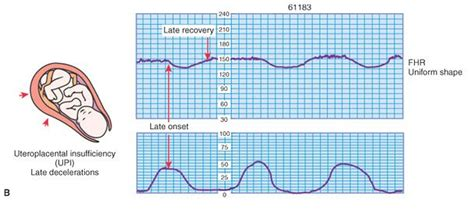 pattern heart rate 11 best images about ctg interprretation on pinterest