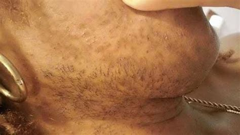 heavy pubic hair female hirsutism in area hirsutism plastic surgery key related