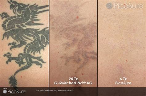 best laser tattoo removal london reset room about picosure laser removal in