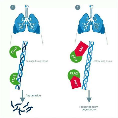 alpha 1 antitrypsin im stuhl 17 best images about alpha 1 antitrypsin deficiency on