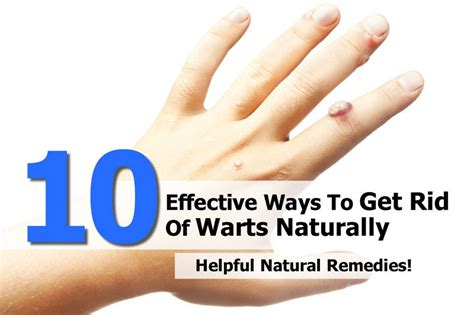 10 effective ways to get rid of warts naturally copley news