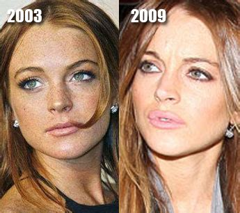 celebrity plastic surgery 24 before after pictures 2015 lindsay lohan plastic surgery before after pictures 2016