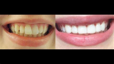 teeth straight  braces