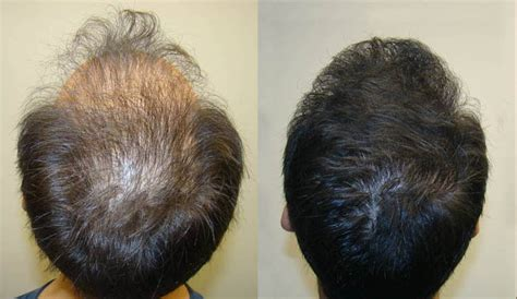 Natural Hair Thin Crown | natural hair thinning crown protect hair from thinning