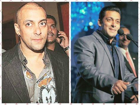himesh reshammiya hair transplant stories of bollywood celebs who went for hair