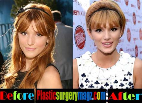 bella thorne before and after surgery bella thorne plastic surgery breast before and after