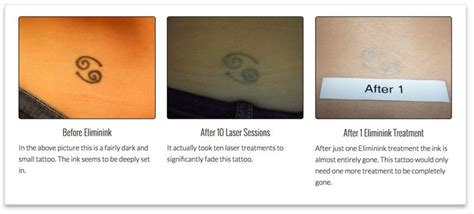 eliminink tattoo removal 9 best before after removal images on