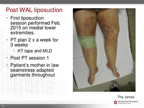 post c section swelling post c section leg swelling lipedema clinical presentation