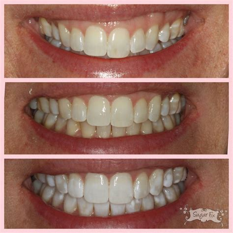 real patient cases smile gallery  dental