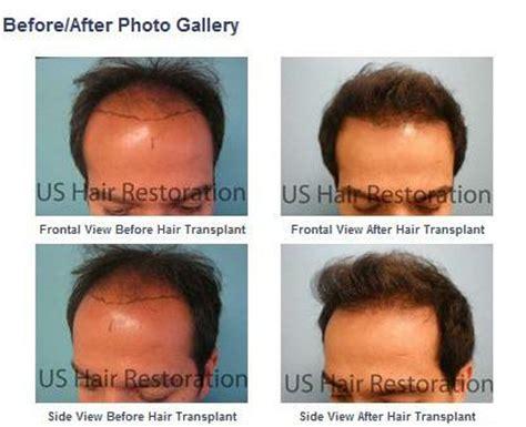 hair transplant china chin length bob for over 50 wallpaper short hairstyle 2013