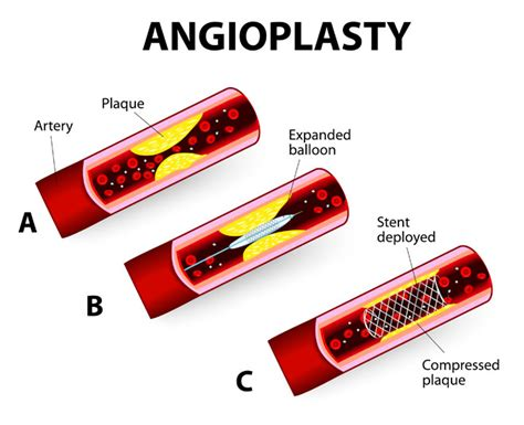 coronary angioplasty with or without stent implantation coronary angioplasty with stent placement orange county