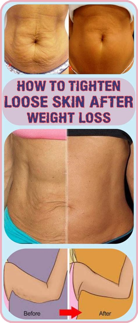 How To Tighten Skin After Weight Loss by The 25 Best Tighten Skin Ideas On