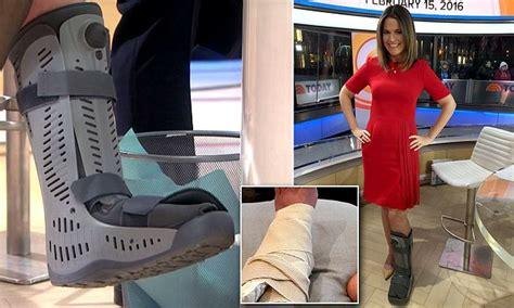 boat show today uk today show s savannah guthrie wears medical boot on her