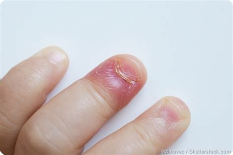 nail bed infection swollen nail bed 28 images nail bed infection swollen nail bed