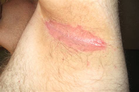 Armpit Rash Causes Pictures Painful Itchy Red Rash | armpit rash causes pictures painful itchy red rash