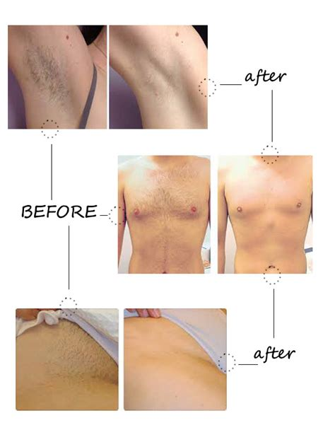laser diode hair removal side effects lightsheer diode laser hair removal side effects om hair
