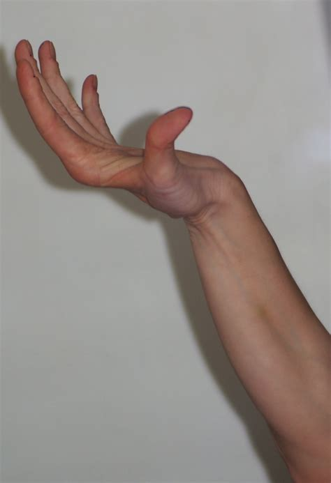 Thumb And Fingers jointed hypermobility andrea s buzzing about