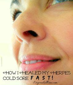 Herpes Detox Bath by 7 Cheapest Ways To Get Rid Of Cold Sores Recipe
