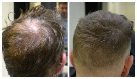 thinning haircut before and after artnaturals argan oil hair loss prevention shoo 16 oz