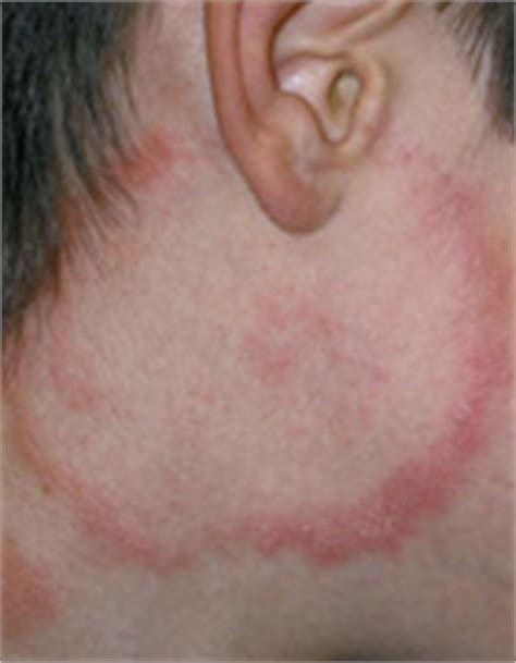 mold rashes on skin exposure to mold ess today 1 800 893 9753