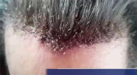 foto pidocchi in testa pidocchi infestazione record sui capelli di un uomo