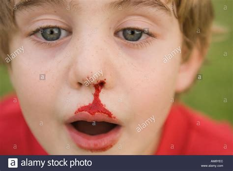 bloody nose bleeding nose www pixshark images galleries with a bite