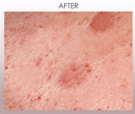 scabies black dr scabies case studies before and after best scabies
