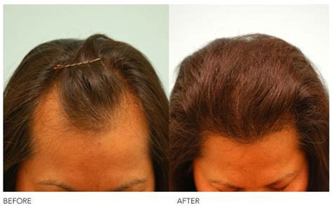transition styles receding hairline image gallery lost hairline