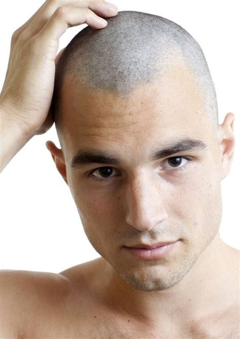 permanent head hair without surgery 25 best images about shaved head style on pinterest