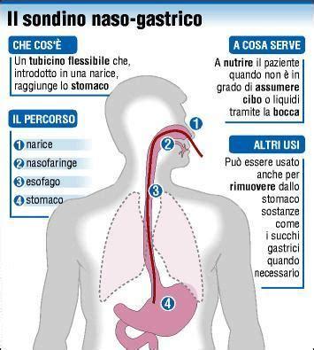 alimentazione peg nursing e nutrizione enterale tramite s n g