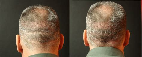 cover scars from hair transplant cover scars from hair transplant cover scars from hair