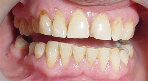 dental implants punjab hollywood smilespatient aged