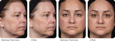 before amp after photos for dermatology treatments