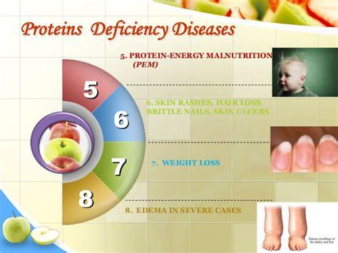 protein 8 deficiency nutrients by sumayya naseem 2003