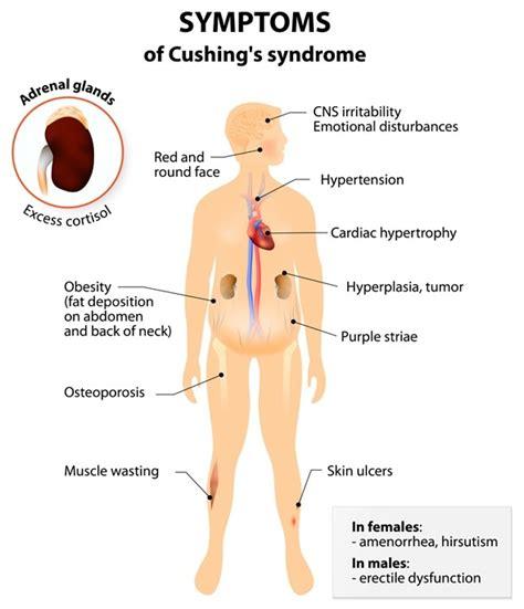 Child Area Rug De Tekens En De Symptomen Van Het Syndroom Van Cushing