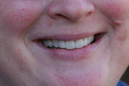 Community Gallery   Dentist in Gainesville GA