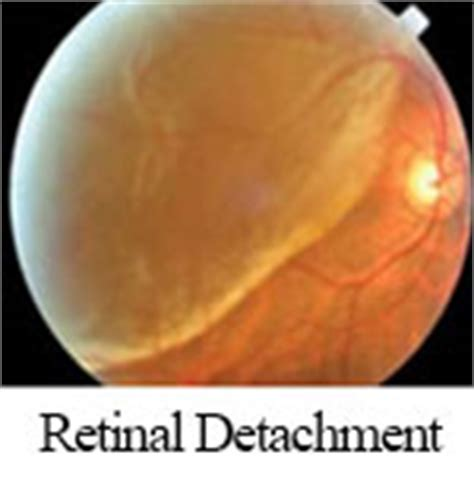 retinal detachment curtain retina specialists danbury macular degeneration new