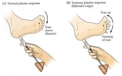 Planter Response by Reflex Babinski Babinski Reflex Extensor Plantar