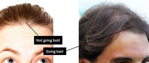 difference between a bald spot and a part am i going bald how to know if you re going bald