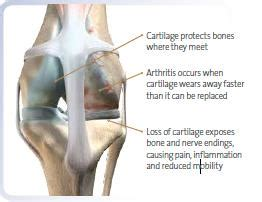 signs of arthritis in dogs diseases arthritis and joint hill s pet