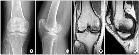 condilo femorale interno gonartrosi artrosi al ginocchio chirurgia ortopedica
