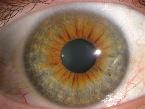 what color is iris iridology torch iriscope iridology iriscope