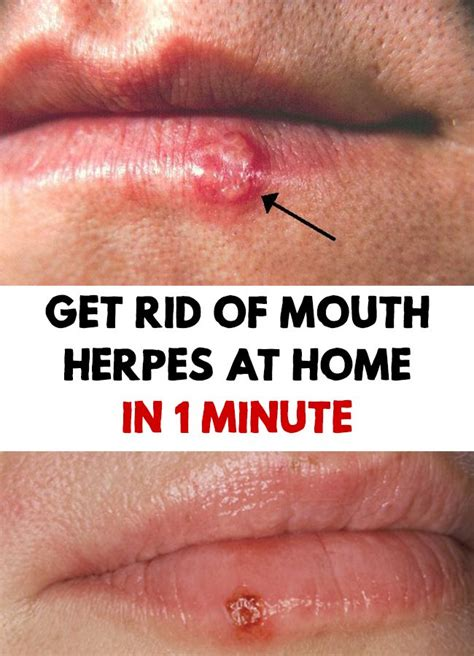 best herpes treatment 25 best ideas about herpes cure on aloe vera