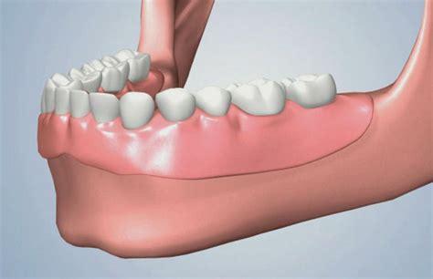 prezzo protesi dentaria mobile protesi studio dentistico angelini