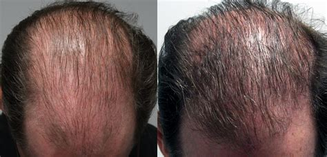 prp for hair loss hair growth injection in toronto