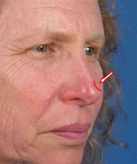 nose cancer rhinoplasty san diego ca cancer reconstruction dr hilinski