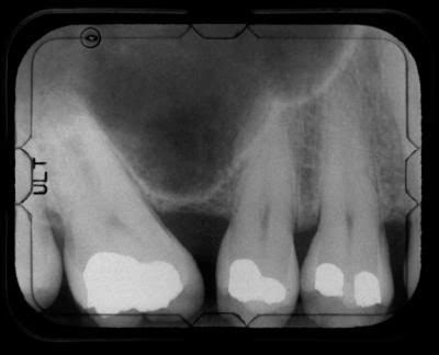 Mercury Ls Danger by What Are The Side Effects Of Mercury Fillings