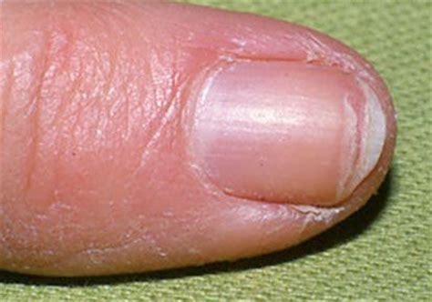 split nail remedies for splitting finger nails to