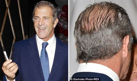 hairstyles for men with a bald spot hollywood bad boy mel gibson bares his scalp