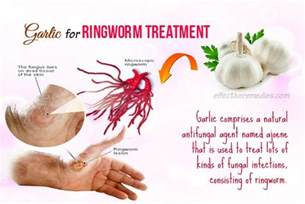 15 best home remedies for ringworm in humans